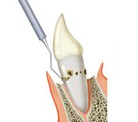 歯周外科治療の方法