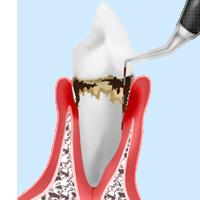歯周病はどうやって検査する?