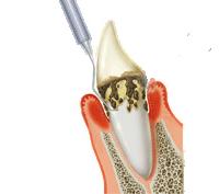 歯根に付着しているプラーク除去の方法