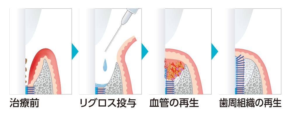 リグロスによる歯周組織の再生